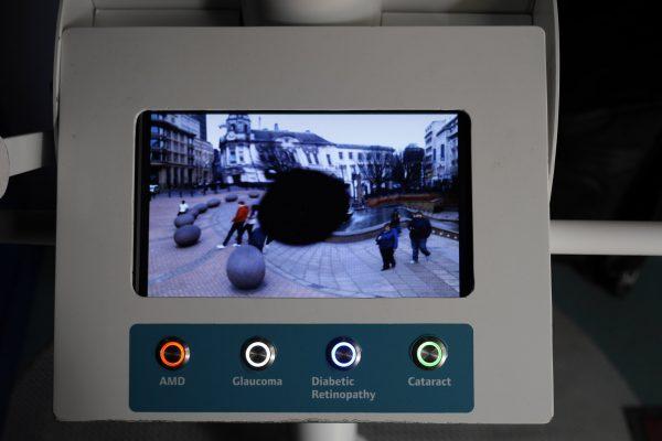 Eye Pod AMD Simulation